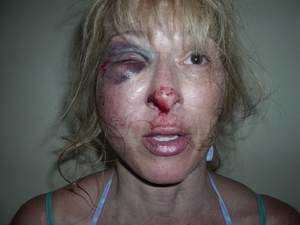 Tallahassee Woman Assaulted by Police